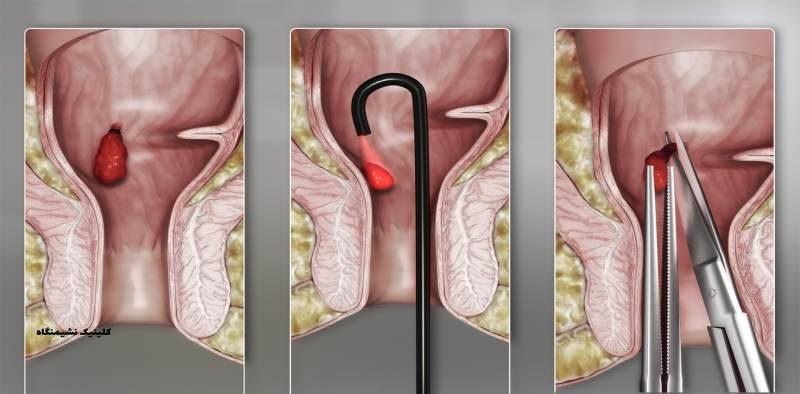 درمان بواسیر داخلی