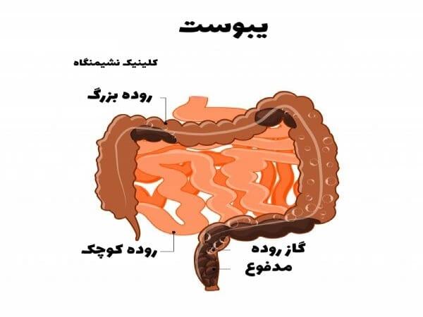 تشخیص علائم و درمان یبوست