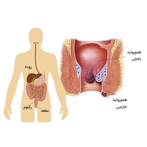 درمان بواسیر یا هموروئید با روش جراحی استپلر