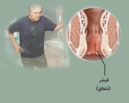 درمان شقاق یا فیشر مقعد به روش طب سنتی