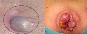 بواسیر خارجی (هموروئید خارجی) | عکس، علائم، روش های درمان
